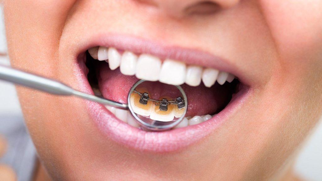 aparat ortodontyczny ursynów