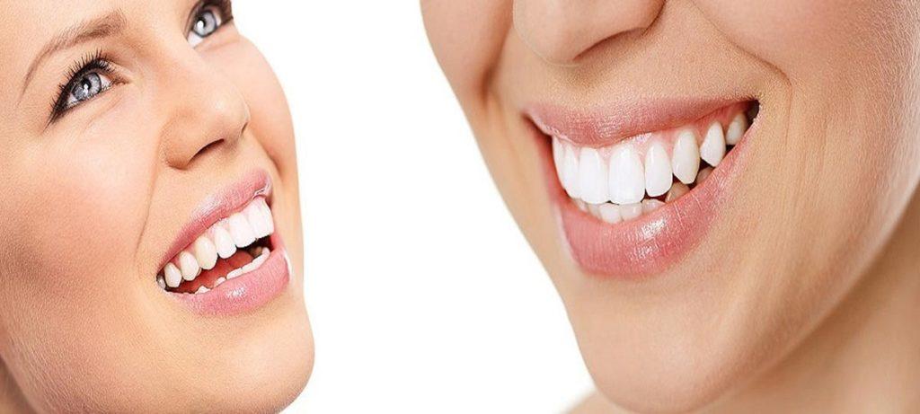 Wybielanie zębów Ursynów